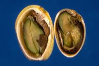 Stigmatomycosis causes the pistachio kernel to become darkened and slimy.